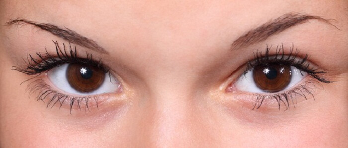 Questions And Answers On Using Eye Cream For Dark Circles Under Eyes